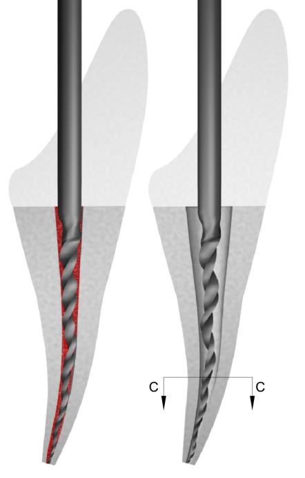 Figure 12A