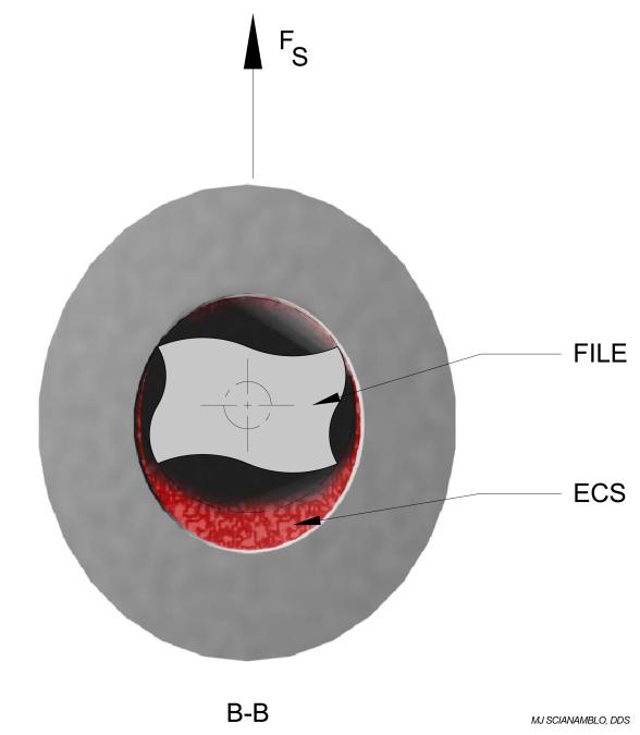 Figure 12B