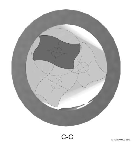 Figure 12C